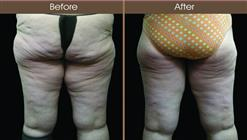 Thigh Lift Surgery Before And After Back Image
