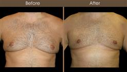 Breast Reduction For Men Before And After Front Image