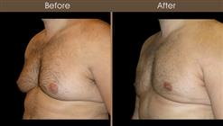 Breast Reduction For Men Before And After