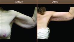 Brachioplasty Results