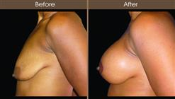 Mastopexy Before And After Left Side View