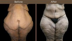 Post Bariatric Surgery Before And After Front View