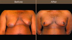 Male Breast Reduction Surgery Before And After Front View