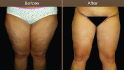 Thigh Lift Before And After Front View