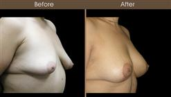 Post Bariatric Surgery Breast Augmentation Results