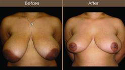 Breast Reduction Surgery Before And After Front View