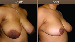 Breast Reduction Surgery Before And After Right Quarter View