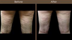 Before And After Cellulaze Treatment
