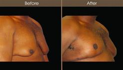 Male Breast Reduction Before And After Right Quarter Image