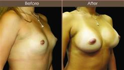 Breast Augmentation Surgery Before And After Right Quarter Image