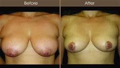 Breast Reduction Surgery Before And After Front Image