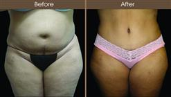 Abdominoplasty Surgery Before And After Front Image