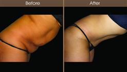 Tummy Tuck Surgery Before And After Right Side Image