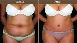 NYC Tummy Tuck Before And After