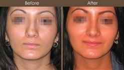 Nose Reshaping Results