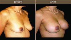 Breast Augmentation Before And After Right Quarter Image