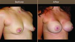 Breast Augmentation Before And After Right Quarter View