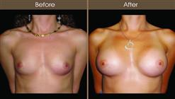 Breast Implant Before And After Front View