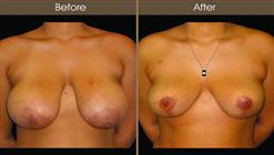 Breast Reduction Before And After Front View