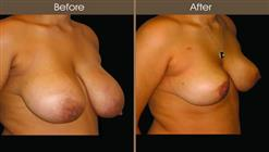 Breast Reduction Before And After Right Quarter View