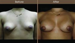 Breast Asymmetry Before And After Front View