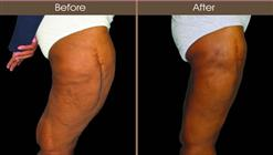 Thigh Lift Results