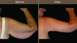 Before And After Arm Lift