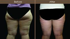 Liposuction Before And After Back Image
