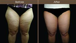 Liposuction Before And After Front Image