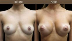 Breast Augmentation Surgery Before And After Front View