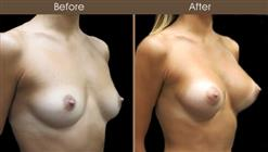 Breast Augmentation Surgery Before And After Right Quarter View