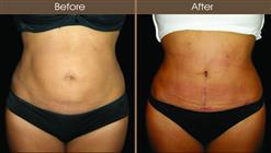Tummy Tuck Surgery Before And After Front View