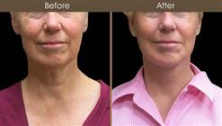 Neck Lift Before And After Front View