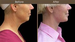 Neck Lift Before And After Right Side View