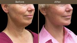 Facelift Before And After Right Quarter Image