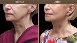 Facelift Surgery Before And After Left Quarter View