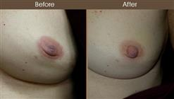 Inverted Nipple Surgery Before And After