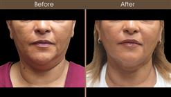 Neck Liposuction Before And After Front View