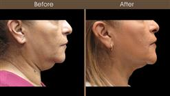 Neck Liposuction Before And After Right Side View