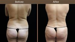 Liposuction Surgery Before & After Back Image