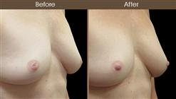 Nipple Correction Before & After