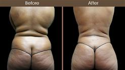 Abdominal Lipo Before And After Back Image