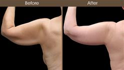 Before And After Arm Lift Back View