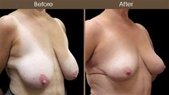 Before And After Breast Reduction Right Quarter Image