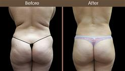 Before And After Liposuction Back Image