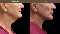 Before And After Neck Lift Right Side View