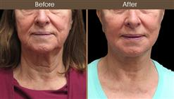 Before And After Neck Lift Front Image