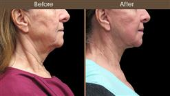 Before And After Neck Lift Right Side Image