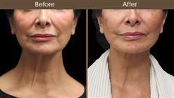 Before And After Facelift Surgery Front Image