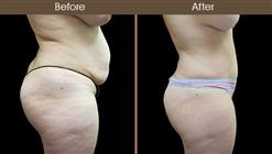 Before And After Tummy Tuck Right Side Image